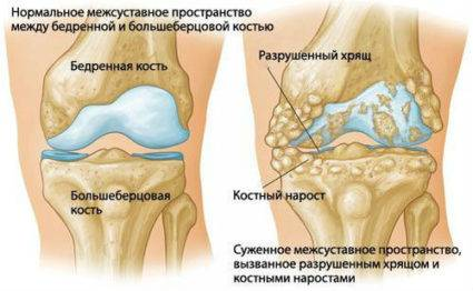 Изображение - Деформация коленного сустава 59dee0caf41f059dee0caf423d