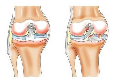 Изображение - Деформация коленного сустава 59dee0cb077df59dee0cb07821