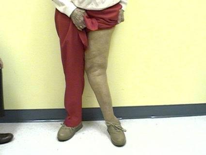 Изображение - Деформация коленного сустава 59dee0cb0ee6559dee0cb0eebe