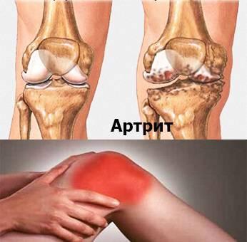 artrit-kolennogo-sustava