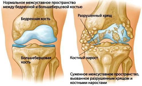 Так выглядит артрит