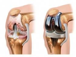коленный сустав до и после протезирования