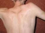 Изображение - Вывих плечевого сустава у ребенка 2 года 59df8fa7a4aeb59df8fa7a4b52