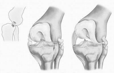 травма колена связки