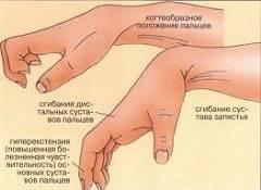 Анкилоз лучезапястного сустава