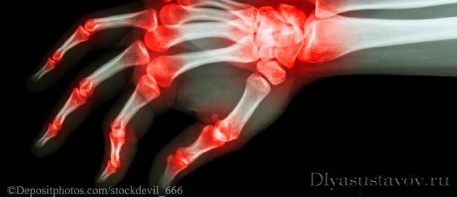 Причины болей в суставах пальцев диагностика