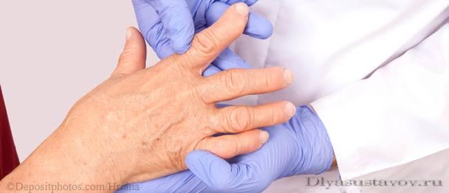 Причины болей в суставах пальцев лечение