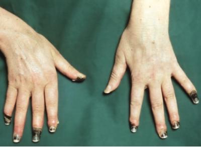 Болит средний палец на левой руке причины