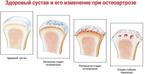 В основе развития остеоартроза лежит нарушение процессов образования хрящевой ткани и ее разрушения. Это происходит из-за недостаточного образования протеогликанов – основного компонента хряща.