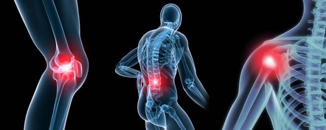 Признаки появления остеоартроза