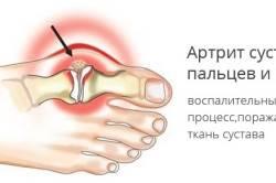 Схема артрита сустава пальца стопы
