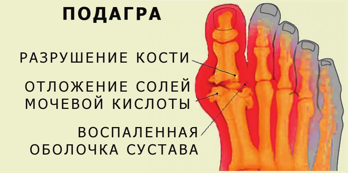 Подагра курильщика