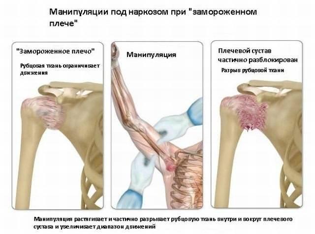 Упражнения при капсулите плечевого сустава