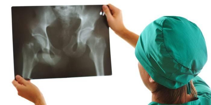 Врач смотрит на рентгеновский снимок тазобедренных суставов