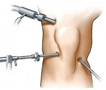Операция на мениске