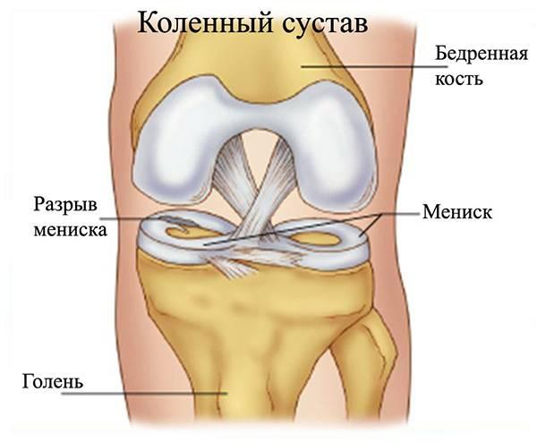 Мениск операция гепатит с
