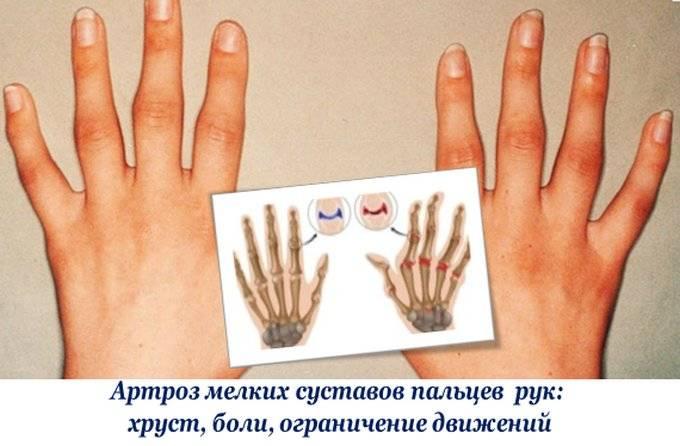 Артроз мелких суставов рук: хруст, боли, утолщение фаланг