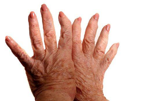 Полиостеоартроз суставов рук