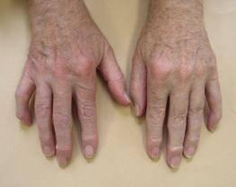 артроз кисти рук симптомы