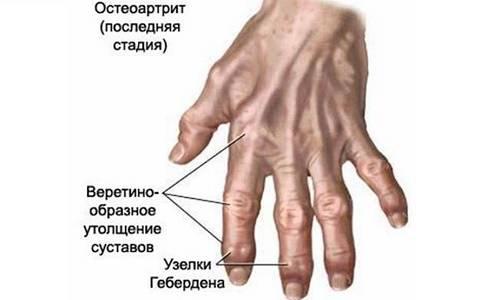 Артроз кистей рук: причины возникновения