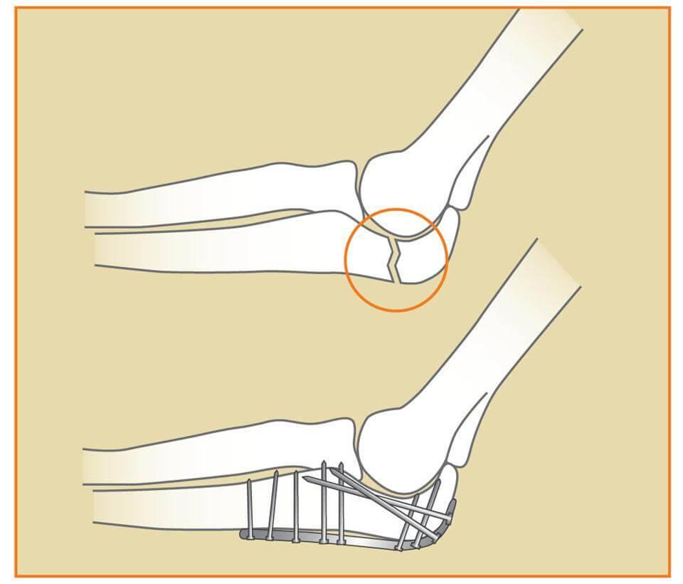 Последствия замены локтевого сустава