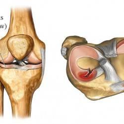 повреждение мениска коленного сустава последствия