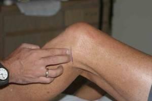 Остеоартроз коленного сустава 1 степени