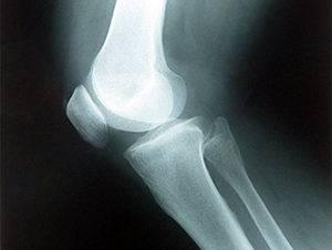 Рентгенография коленного сустава