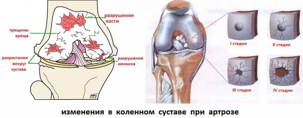 Замена сустава колена при артрозе