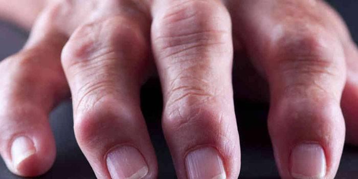 Ревматоидный артрит пальцев руки