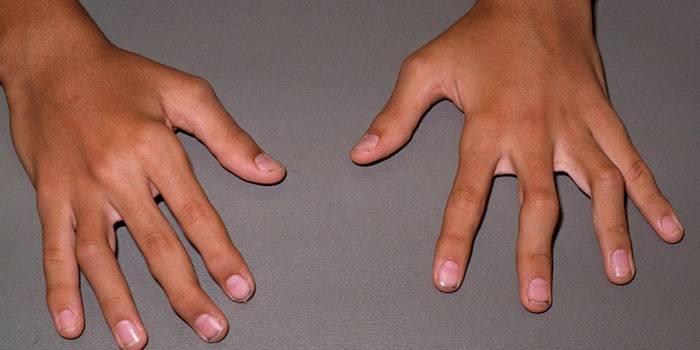 Ревматоидные узелки на руках у парня