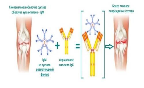 Ревматоидный фактор в крови