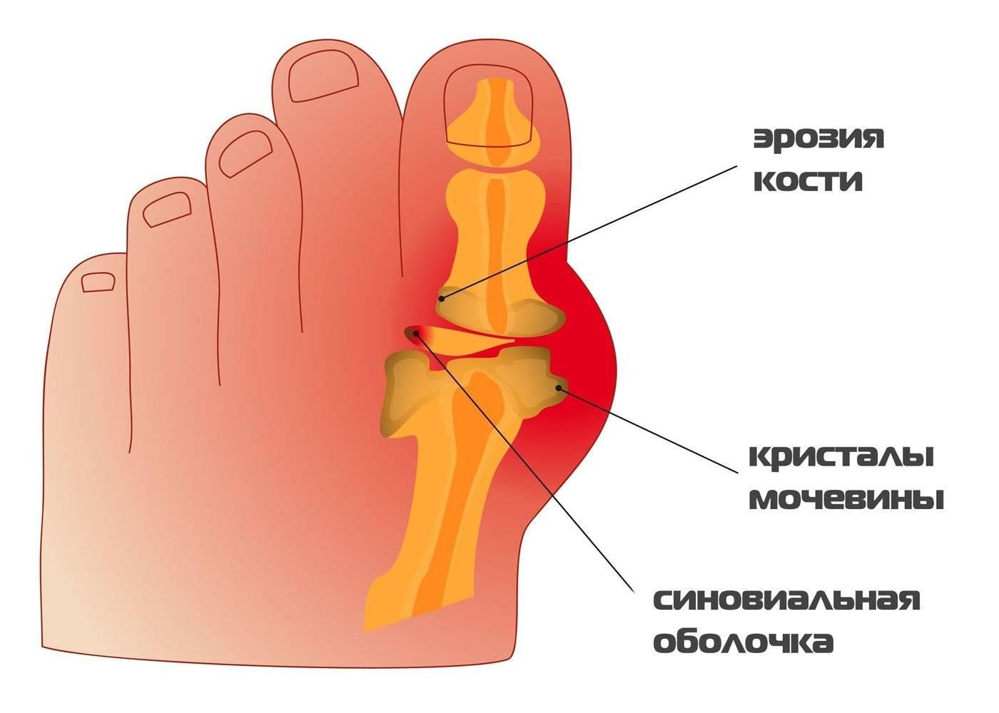 Средство от подагры на ногах — Суставы