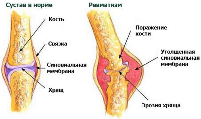 ревматизм суставов ног симптомы и лечение