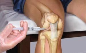 Уколы при боли в суставах