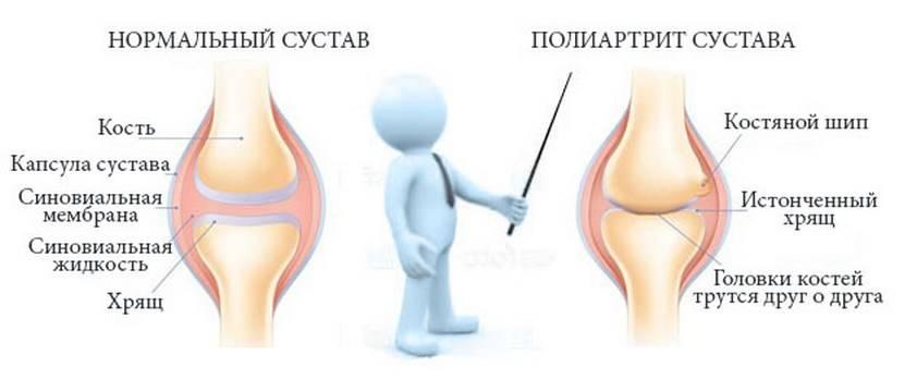 лечить полиартрит