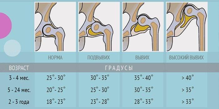УЗИ тазобедренных суставов у новорожденных и взрослых что показывает и таблица норм углов