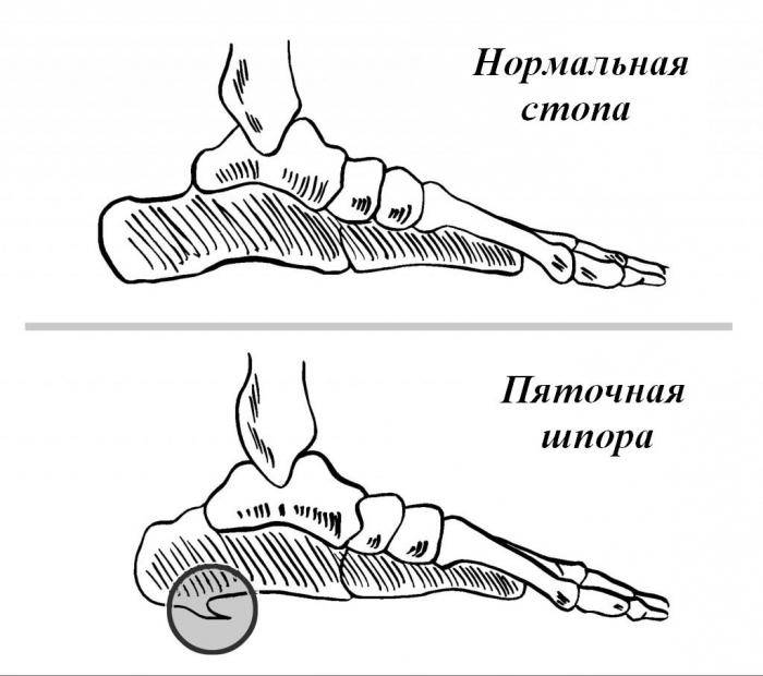 лечение пяточной шпоры раками