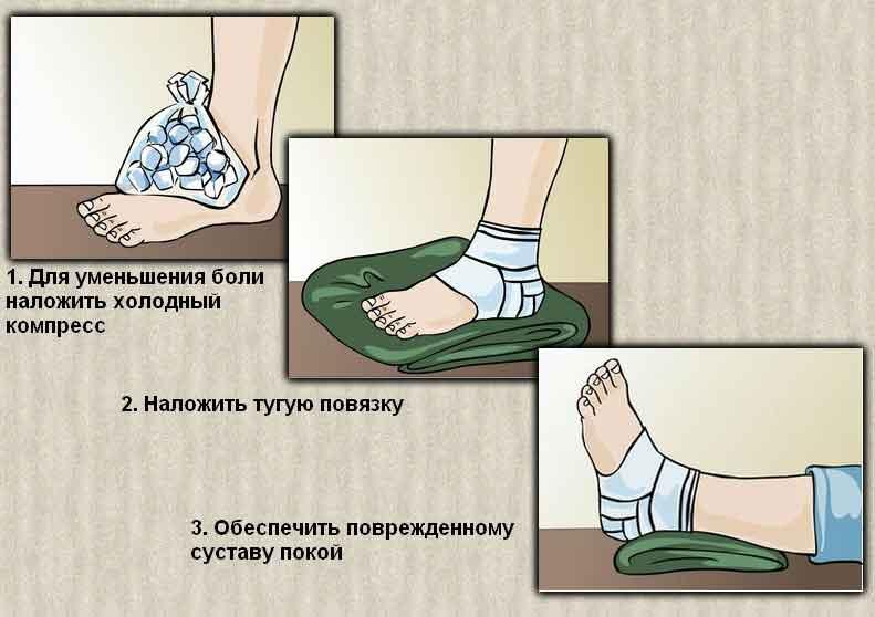 вывих ноги голеностопа лечение