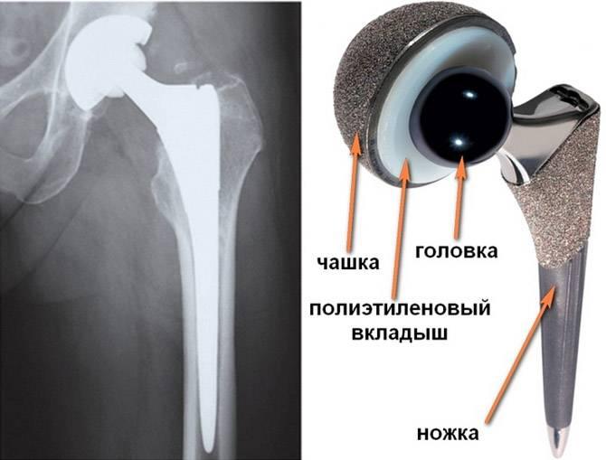 эндопротезирование тазобедренного сустава страйкер