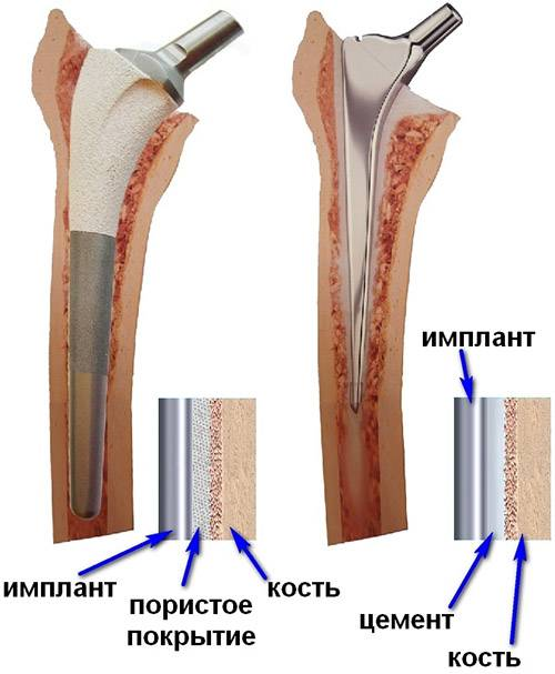 Цементные и бесцементные ножки