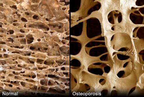 Какие есть эндопротезы для тазобедренных суставов