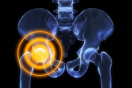 Лфк при остеоартрозе — Суставы