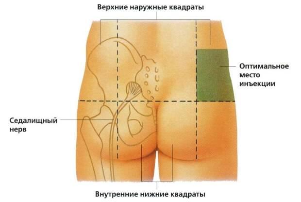 Куда делать укол
