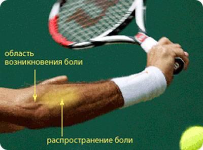 Эпикондилит в результате занятий спортом
