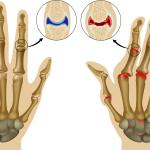 лечение артрита пальцев