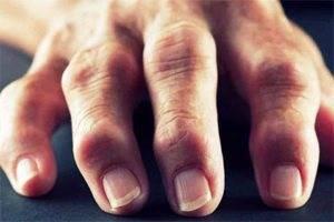 Виды артрита пальцев и кистей рук