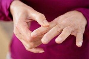 Медикаментозное лечение ревматоидного артрита пальцев рук