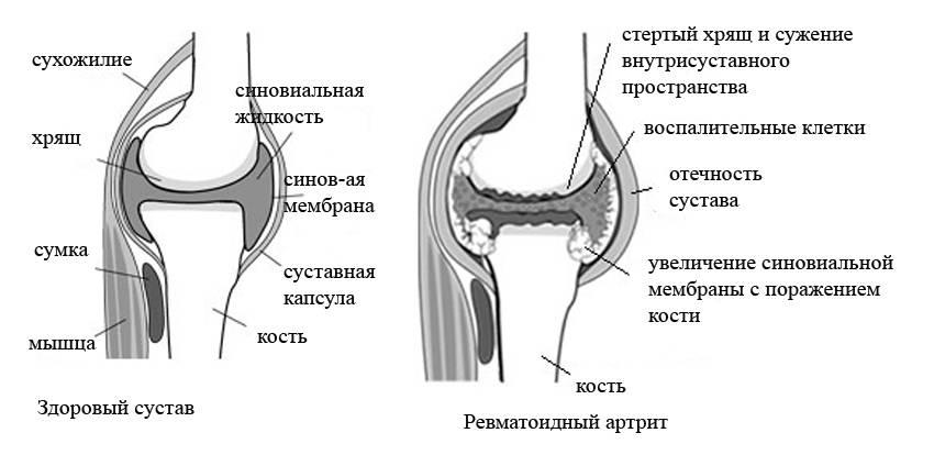 Деформирующий артрит Суставы