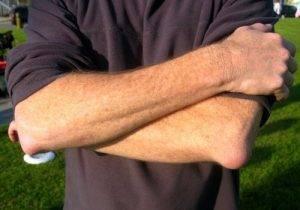 Подкожная опухоль при бурсите локтевого сустава